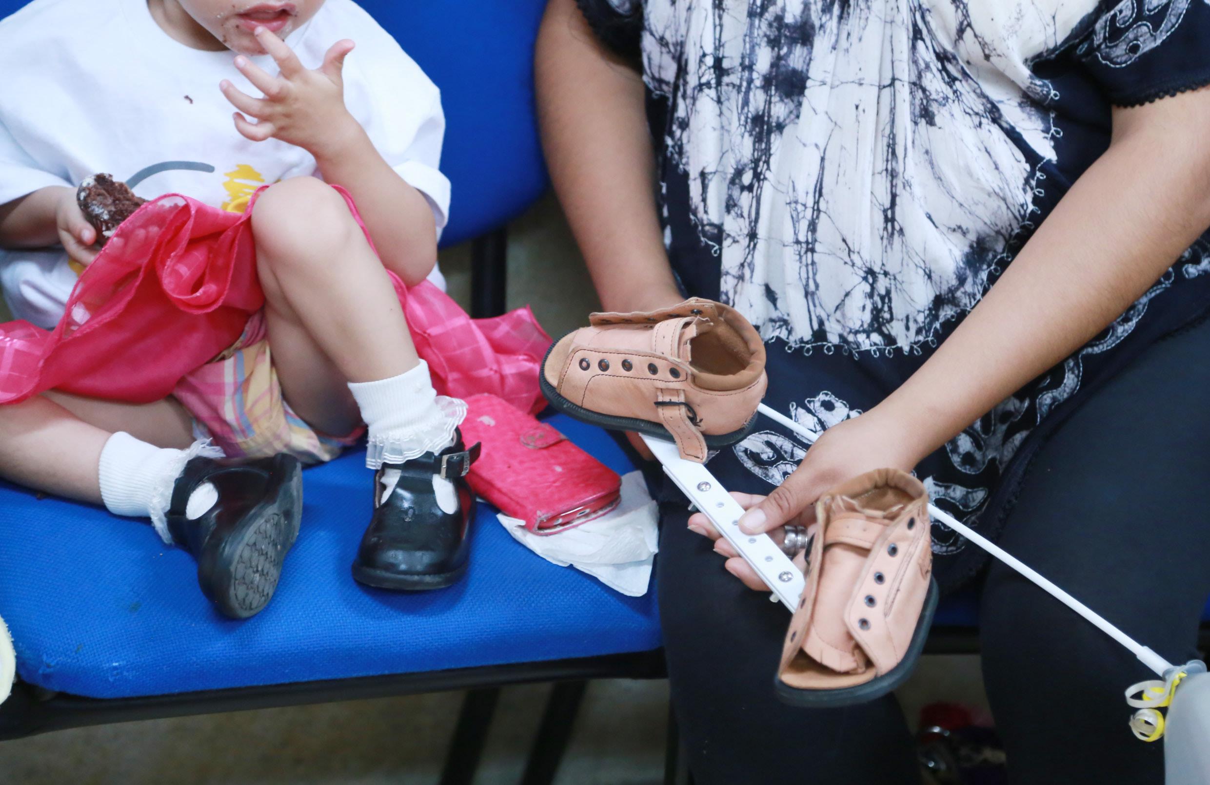 Madre de paciente pediátrico, portando un par de zapatos especiales para el tratamiento del pie equino.