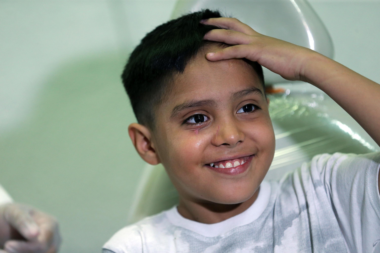El niño de 10 años sonriente despues de que le fue puesto la protesis del ojo derecho