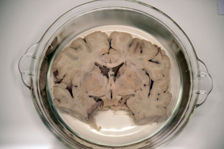 Parte de un cerebro partido a la mitad y colocado sore una bandeja de plato.